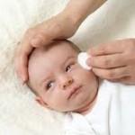nguyên nhân và cách chữa tắc tuyến lệ ở trẻ sơ sinh