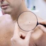 dấu hiệu nhận biết bệnh qua da