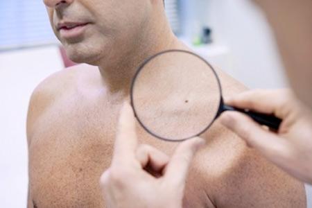 Những dấu hiệu nhận biết qua da của bạn về sức khỏe