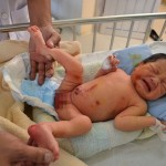 Trẻ sơ sinh đang được điều trị tại bệnh viện Dăc lắk