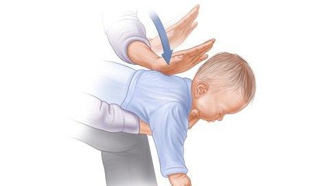 Vỗ lưng xử lý sặc sữa ở trẻ sơ sinh