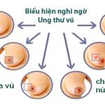 Ung thư vú cách phòng và phát hiện sớm để giảm nguy cơ mắc bệnh ?