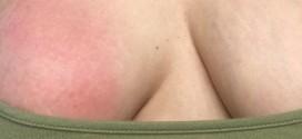 Diều trị viêm tuyến vú có mủ ở đâu uy tín tại Hà Nội ?